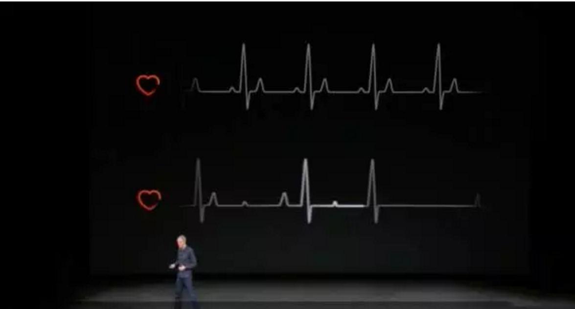 苹果发布会医疗产品